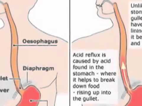 how to stop heartburn fast Apple Cider Vinegar  Cure Acid Reflux / Heartburn GERD