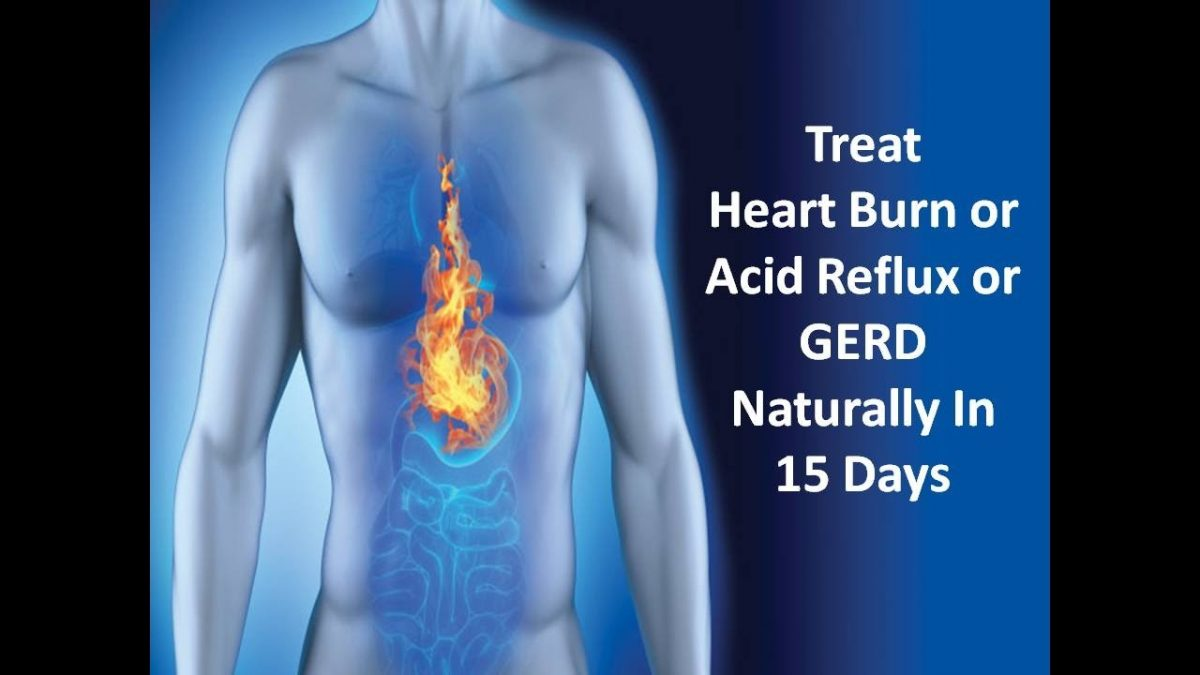 How to Treat Heart Burn/Acid Refux/Gerd in 15 Days – Heart Burn Remedies