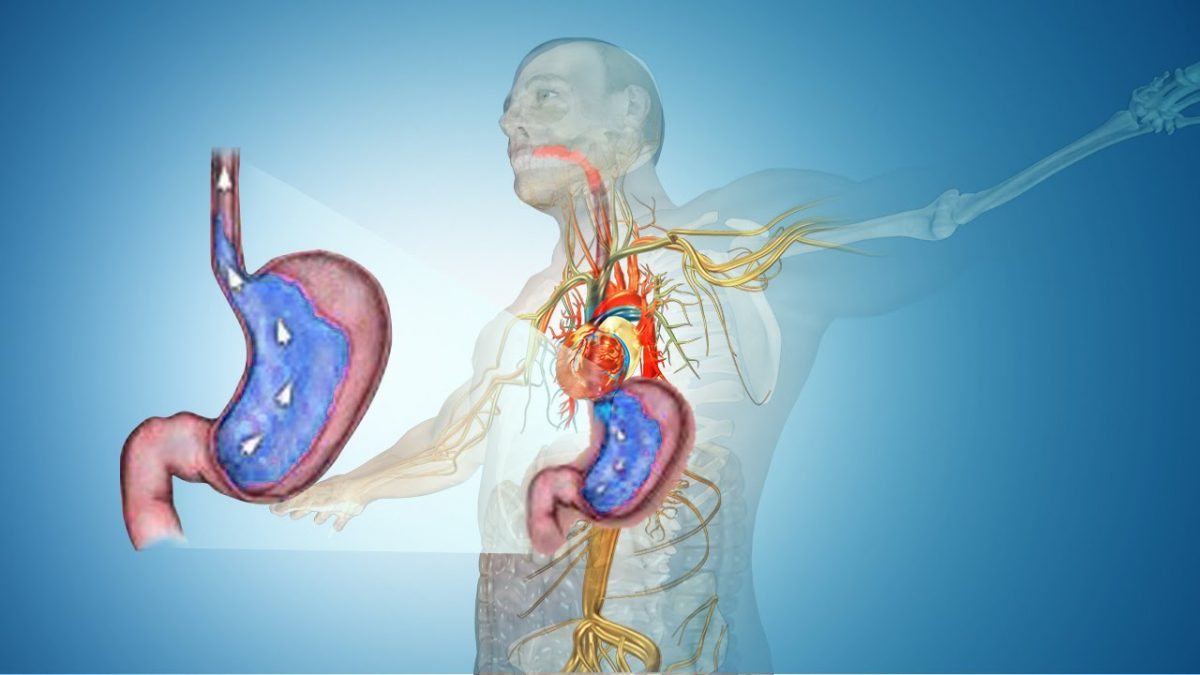 Treat Heartburn The Natural Way: Home Remedies & Prevention Tips
