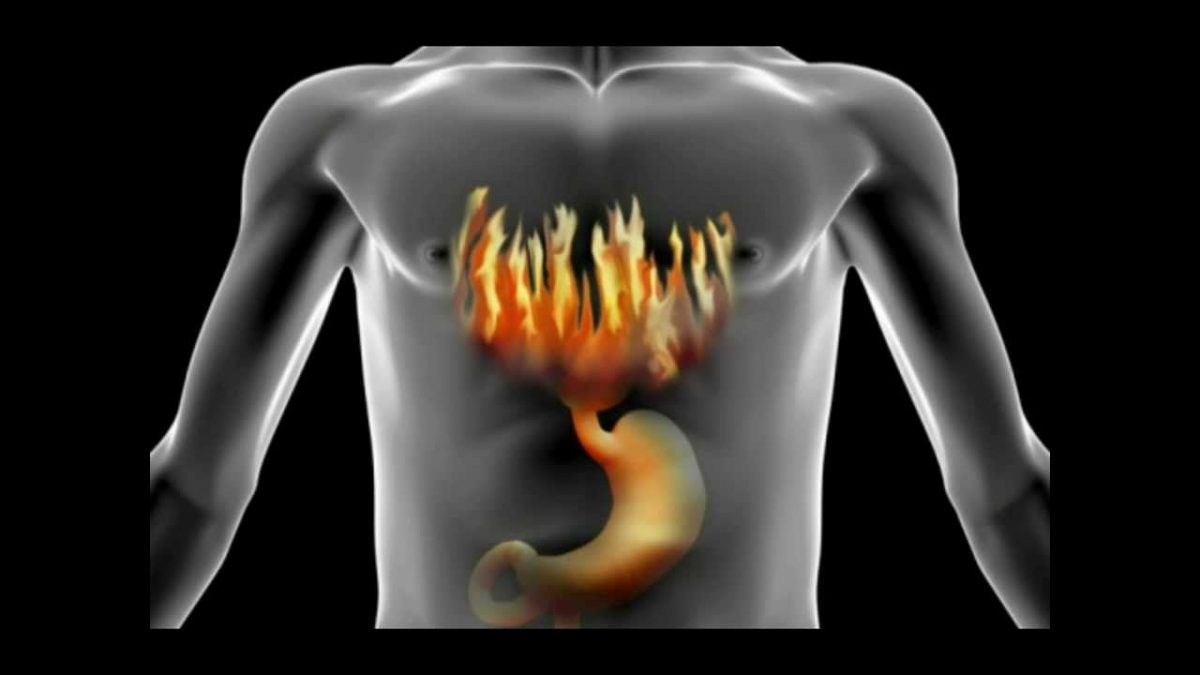 How To Treat, Cure & Stop Heartburn | Acid Reflux (My Story)